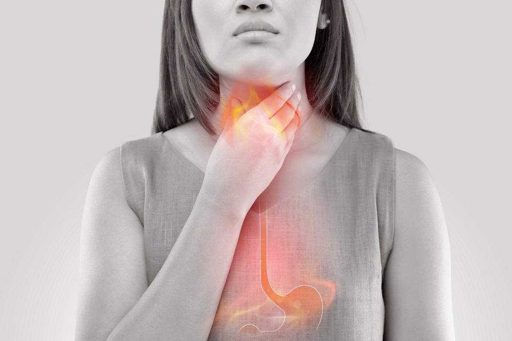 """Když """"pálení žáhy"""" může škodit zdraví. Reflux trápí až 10 procent populace"""