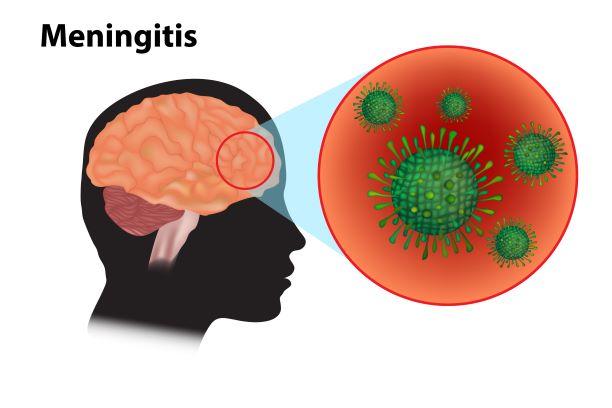 Chraňte své děti před meningokokovým onemocněním – riziko nákazy je s nástupem do škol vyšší