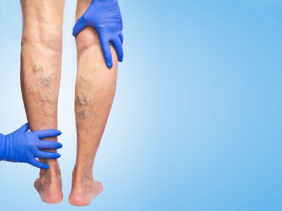 Oteklé nohy, metličky, či křečové žíly... Do jaké skupiny patříte vy?