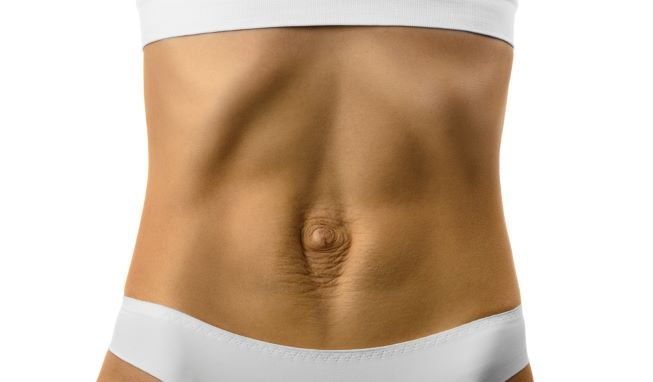 Diastáza - rozestup břišních svalů