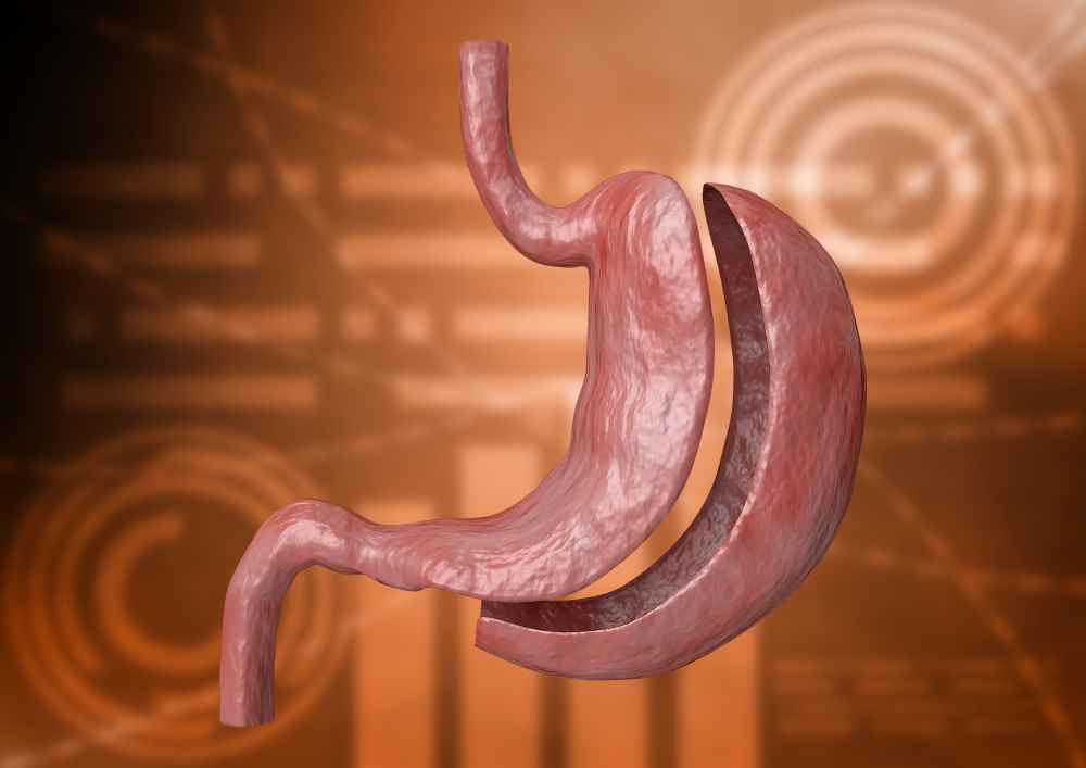 Deset základních faktů o bariatrické chirurgii