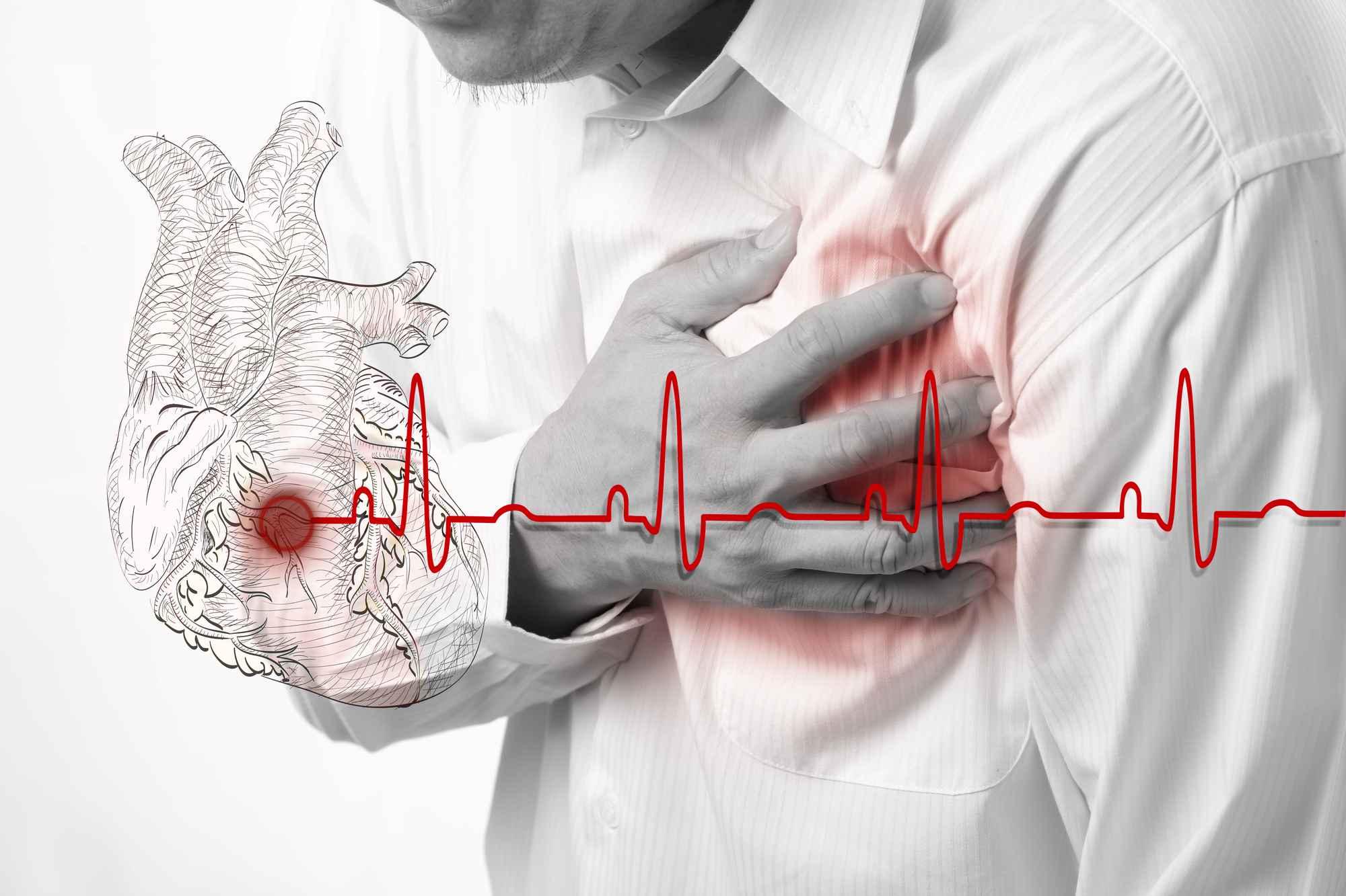 Infarkt nebo mrtvice se mohou týkat i vás. Chraňte své srdce