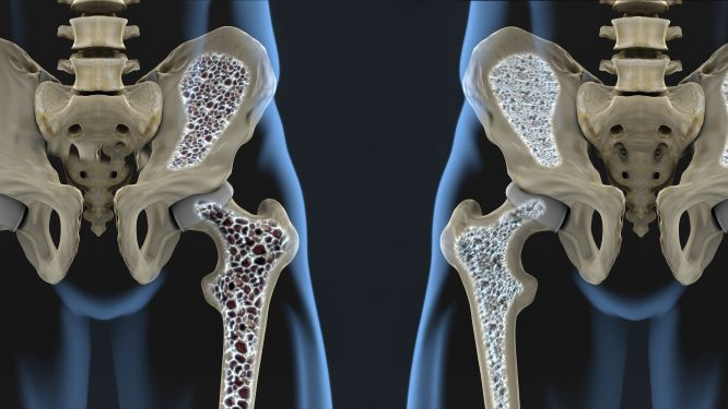 Tichý zloděj kostí. Osteoporóza nevaruje - udeří