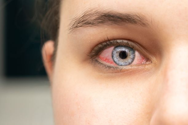 Oči červenají únavou, ale i v případě závažných onemocnění