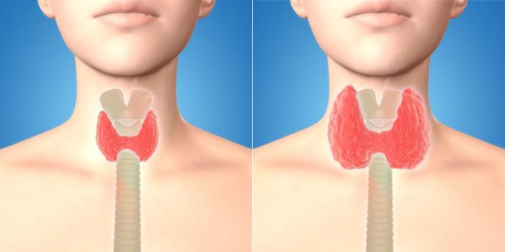 Hormony štítné žlázy ovlivňují i srdeční činnost a IQ