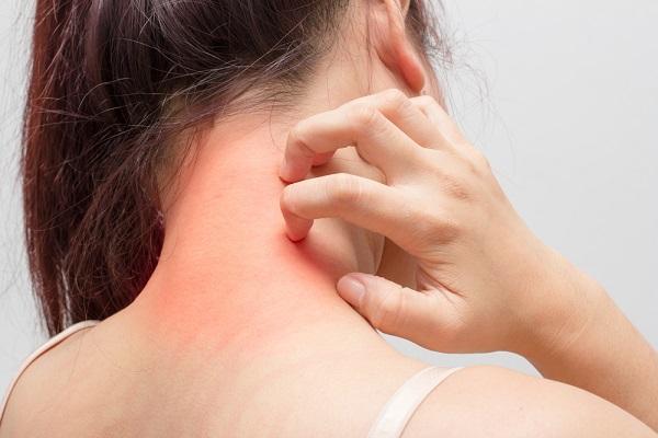 Alergický projev na kůži