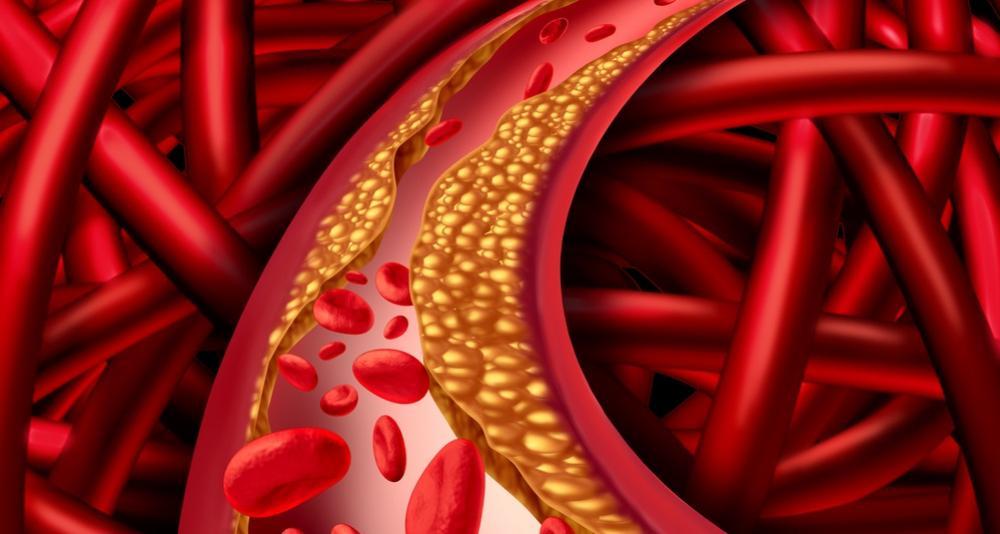 Cholesterol a tuky – znáte svoje hodnoty?