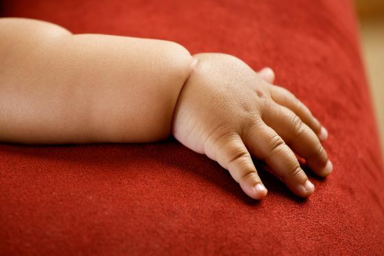 Obézní dítě – kam se obrátit o pomoc?